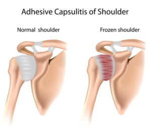 frozen_shoulder_2